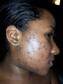 dark pimples on the skin picture 3