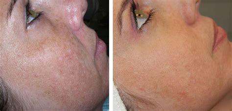 cellulite retinol cream at walgreens picture 1