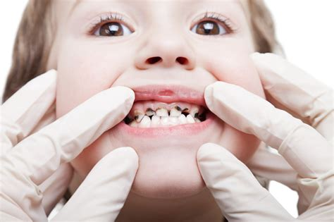 childrens teeth picture 15