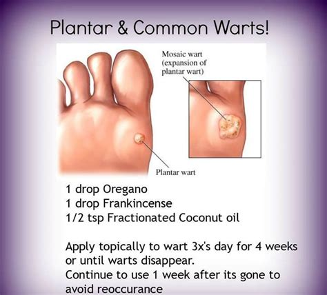 how does duct tape get rid of common warts picture 2