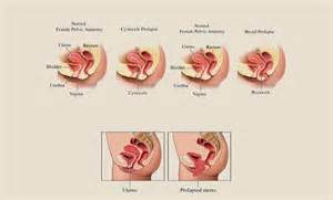 dropping bladder symptoms picture 17