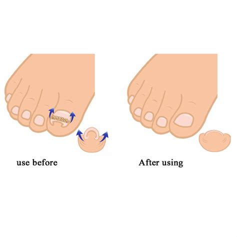 what podiatrists in the united states use the picture 7