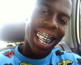 find people that does gold teeth in houston picture 3