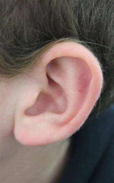 pressure in my ear when i sleep picture 6