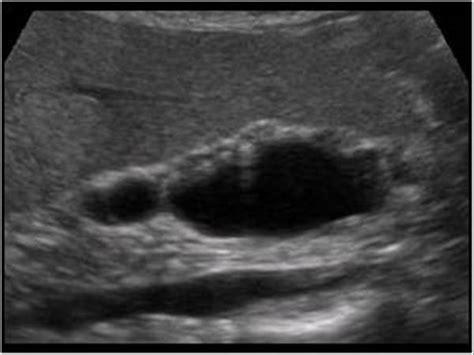 adenomyomatosis treatment picture 18