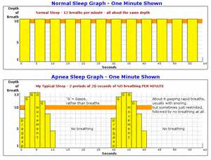 charts on sleep apnea picture 1