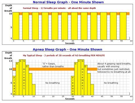 charts on sleep apnea picture 1