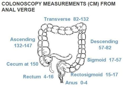colon cancer surgery view picture 7