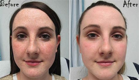 freckles on skin homeopathy ar ayurvedic treatment picture 2