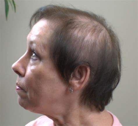 hair loss 60 year old woman picture 6