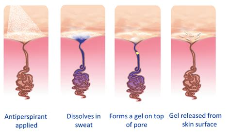 what anti perspirant works the best for boils picture 2