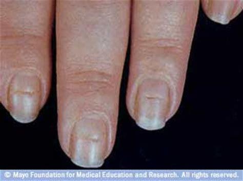 fingernails show signs of liver failure picture 8