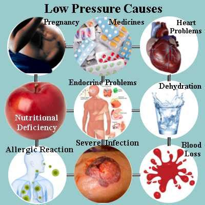 Extremely low blood pressure in hemodialysis picture 1