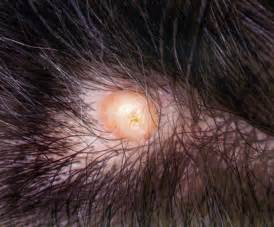 sebaceous cyst on head picture 1