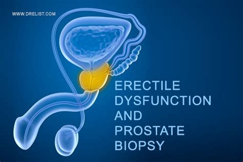 Prostate biopsy risks picture 9