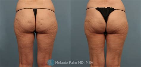 cellulite treatment san diego picture 2