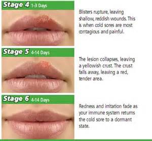 what nerves are affected by herpes picture 21