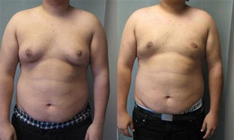 new york breast enlargement picture 3