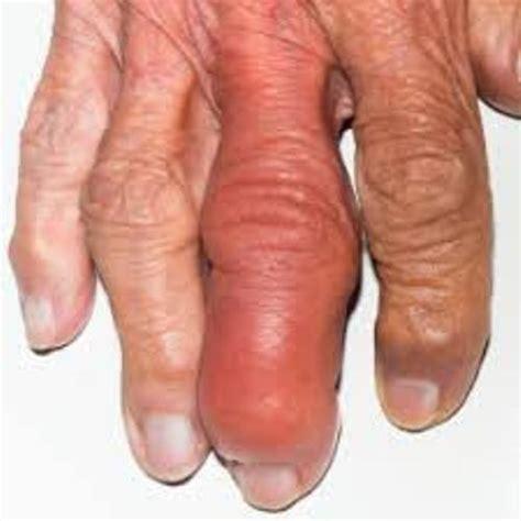 arthritis picture 14