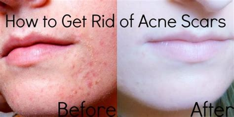 nautral pills to get rid of acne picture 1