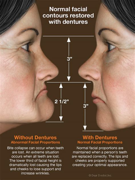 decreased protein and skin impairment picture 5