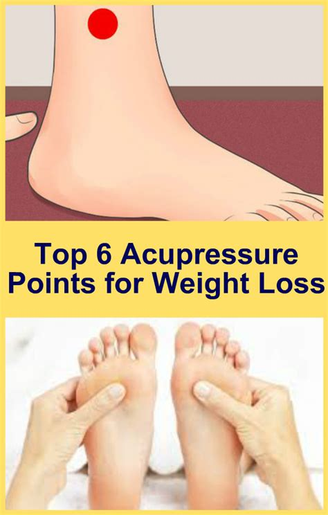 acupuncture weight loss picture 17