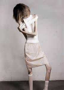 anorexic picture 6