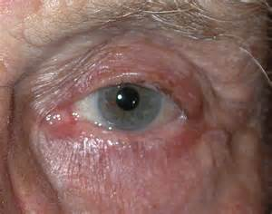 keratin cyst of eyelid picture 6