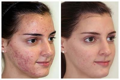 revitol scar cream after i finish micro needling on face picture 4