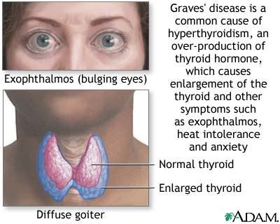 can taking too much thyroid cause goiter picture 4