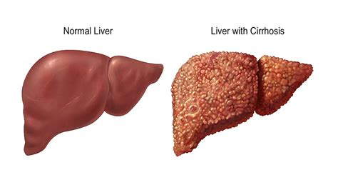 human healthy liver picture 7