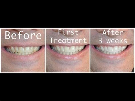 baking soda and peroxide to whiten teeth picture 3