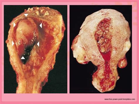 colon cancer stages picture 18