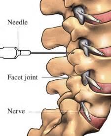 facet degenerative joint disease picture 13