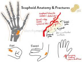 bone fracture and blood circulation picture 6