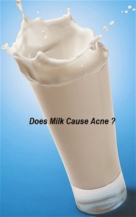 acne milk picture 10