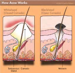 acne vs blackheads picture 3