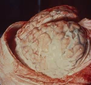 bacterial meningitis hole in brain picture 6