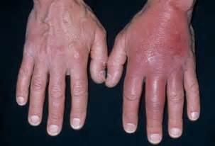 bacterial infection on palm of hand picture 1