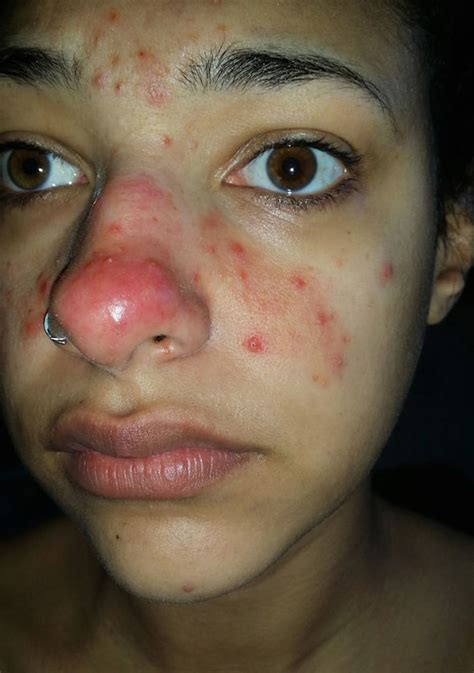 cure for red spots from acne picture 6