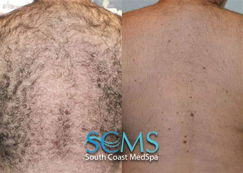 back hair removal picture 3
