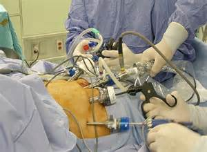 Prostate cancer laparoscopic picture 2