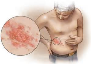 when do herpes symptoms appear picture 17