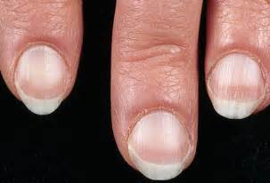 liver sign-nails picture 1