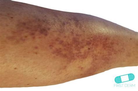 central nervous system strain skin rash picture 9