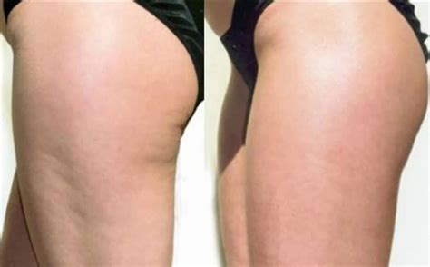 what works best for cellulite picture 9