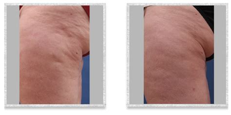 cellulite and laser picture 7