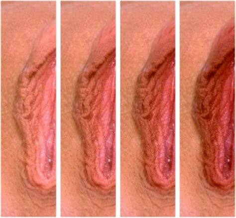 white skin spots on labia picture 9