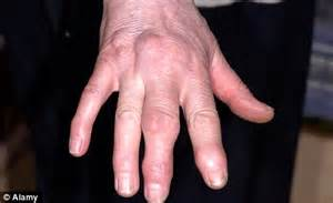 what causes joint pain in the fingers great picture 10