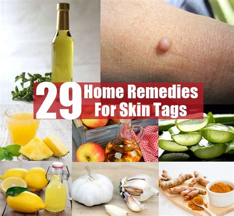 home remedies skin tags picture 6